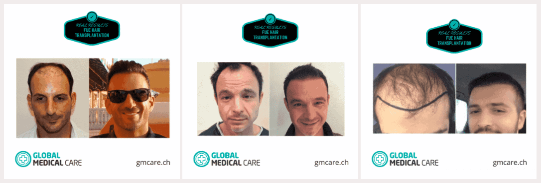 Hairtransplantation Before After