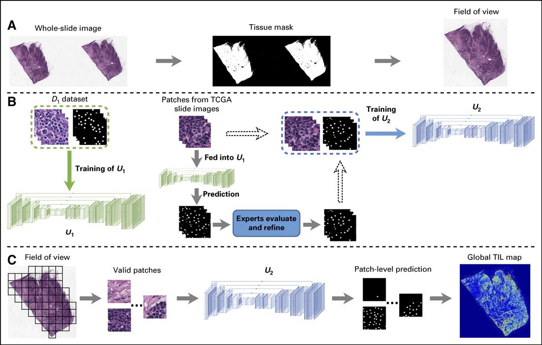 The pipeline for identification of tumor-infiltrating lymphocyte (TIL) maps on whole-slide histopathologic images. Image: Lu et al., 2020.