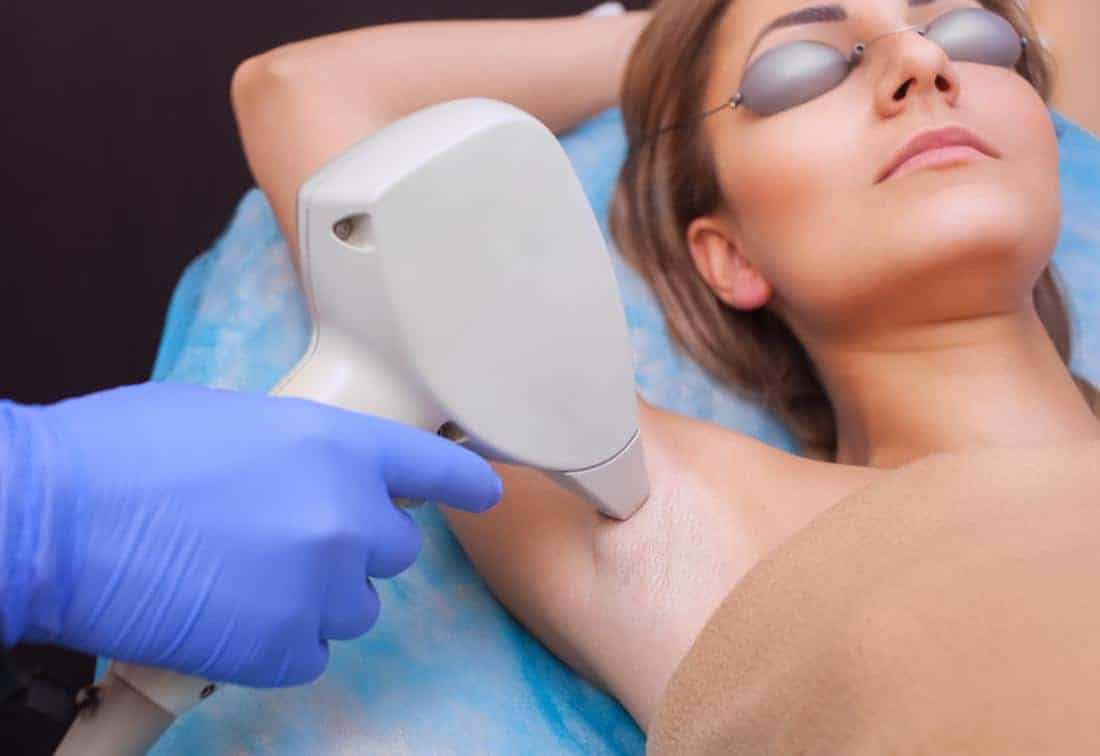 Best Laser Hair Removal Toronto