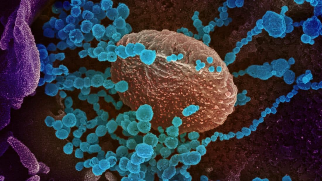 Scanning electron microscope image of SARS-CoV-2, the virus that causes COVID-19, emerging from the surface of cells cultured in a lab.