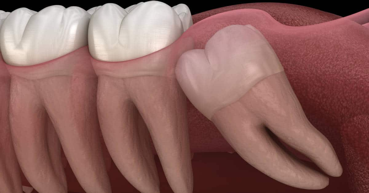 impacted back molars causing problems