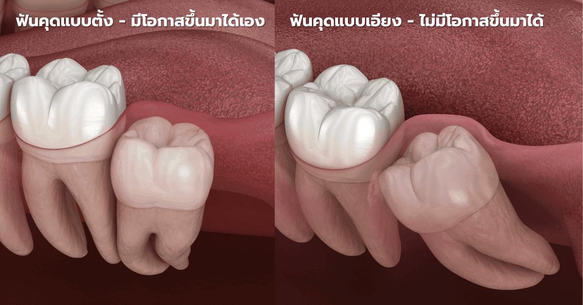 รูปฟันคุดแบบต่างๆ ที่ต้อง ผ่าฟันคุด หรือ ถอนฟันคุด