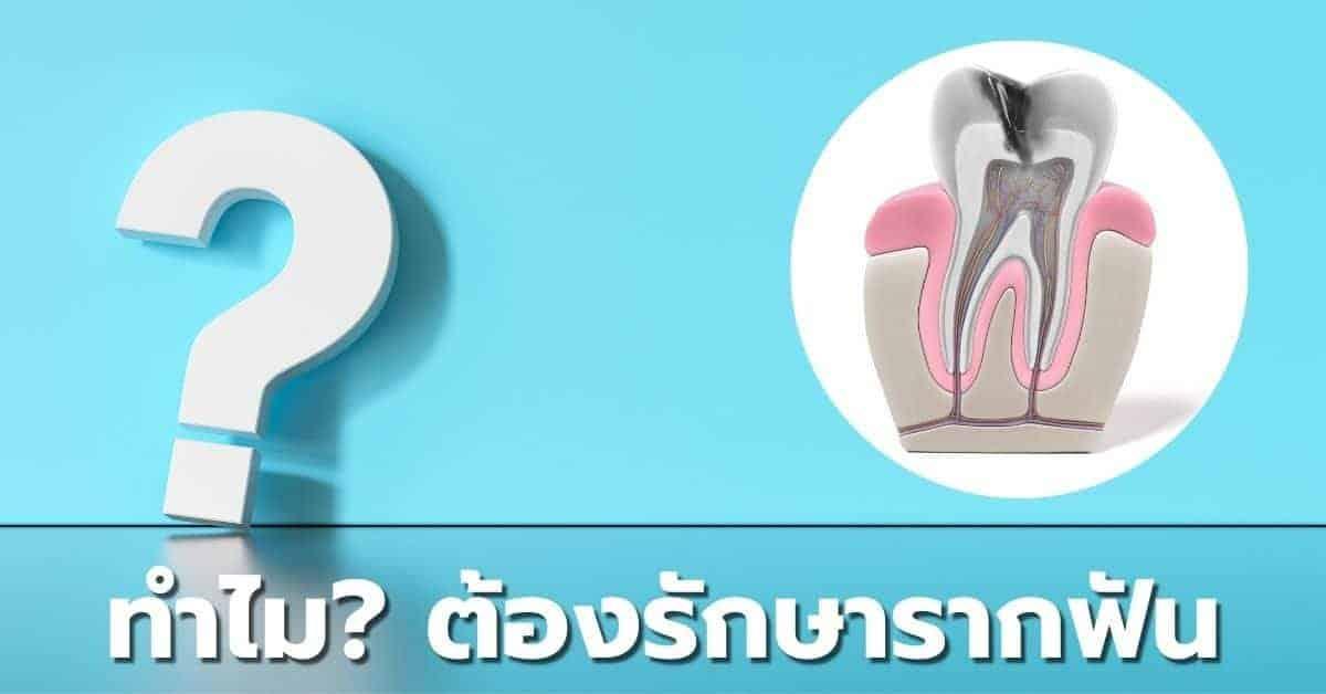 ทำไมต้องทำ การรักษารากฟัน หรือ รักษาคลองรากฟัน