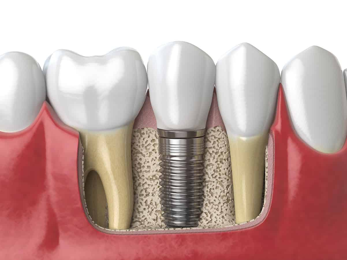 3d illustration showing a dental implant crown and screw fused to the jaw bone alongside natural teeth Keynsham dental care