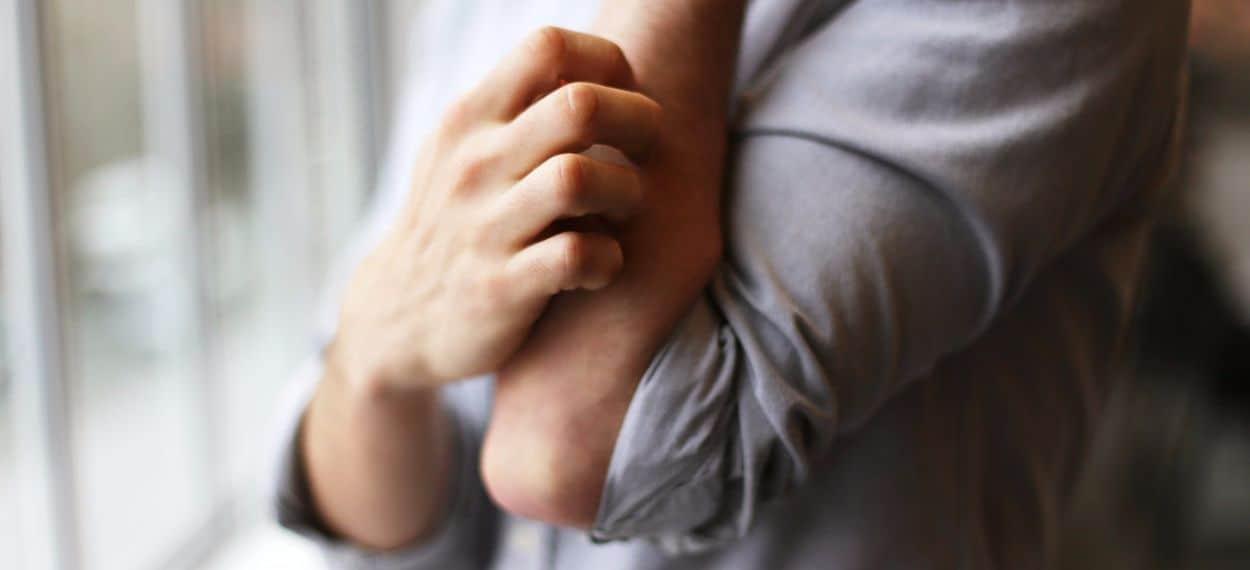 Psoriasi malattia fastidiosa e pericolosa che si può curare bene