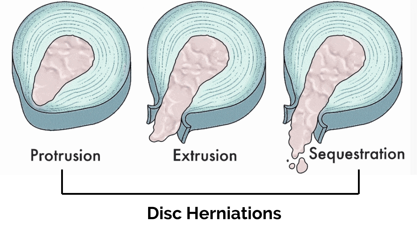 types of herniated discs
