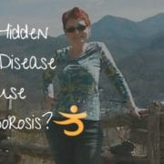 Can hidden celiac disease cause osteoporosis?