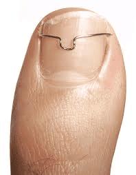 ortonixia con filo titanio