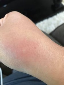 Pictures of Bed Bug Bites 2