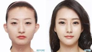 Before After Face Contouring In Korea
