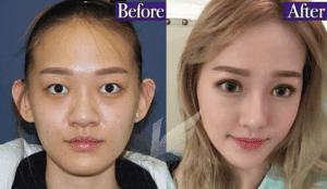 韩国鼻头鼻翼缩小手术最好的整形医院