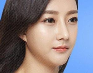 Long Chin Surgery korea