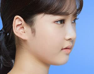facial asymmetry surgery korea