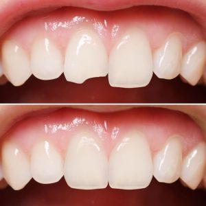 Teeth Bonding Service Los Angeles