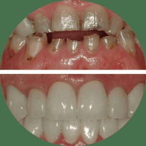Carillas Dentales Antes Después Fotos Mejores Críticas