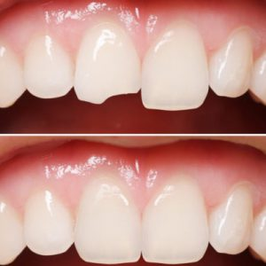 Dental Emergency Chipped Tooth