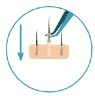 Implantation de greffons - HD FUE