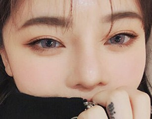 Double Eyelid Surgery In Korea