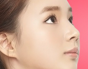 Non-incision Lower Blepharoplasty in korea
