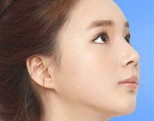 Protruding Chin Surgery In Korea