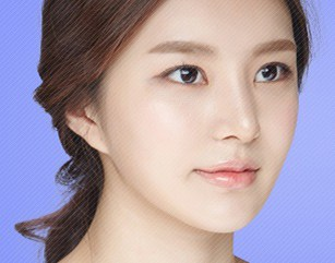 Zygoma Reduction In Korea