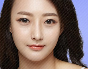 V Line Surgery In Korea (Jaw Surgery)