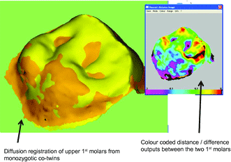 This 3D mapping overlay shows the difference in tooth shape and surface area between a pair of identical twins, demonstrating that factors other than genetics help determine tooth topography. Figure: Yong et al., 2014.