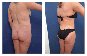 fat transfer for buttocks augmentation patient 1 back right view