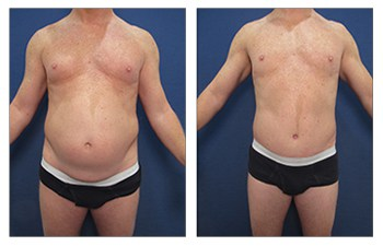 tummy tuck men 2 before and after