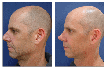 revision rhinoplasty patient 3 left view