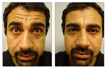 botox surgery before and after