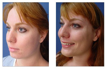 chin augmentation surgery patient 2002 front left view