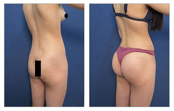 buttock enhancement back right view