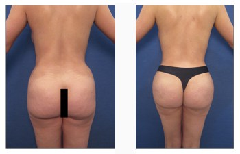 buttock enhancement with buttock reduction back view