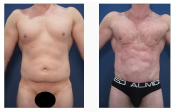 Best Way to Get a Square Chest: The Masculinized Chest Appearance, CPSI