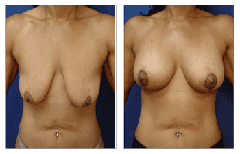 Breast Lift with Implants Cost, CPSI