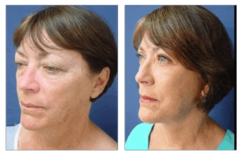 Face Lift and Neck