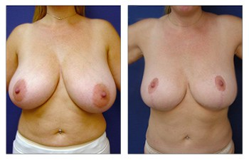 How Does Breast Lift work, CPSI.