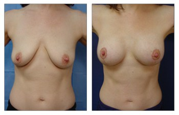 When Is A Breast Lift Covered By Insurance, CPSI.