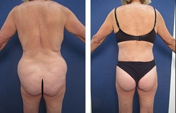 Who Does The Most VASER Liposuction Surgeries, CPSI