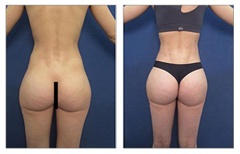 brazilian buttock lift surgery before and after