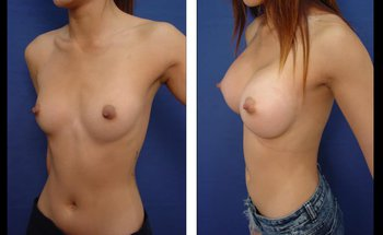 Free Natural Breast Augmentation with Liposuction 360