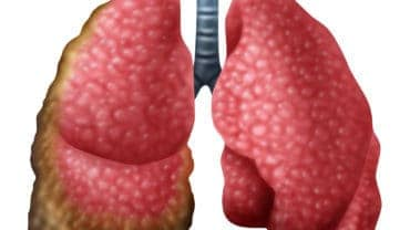 Mesothelioma cancer disease concept as human lungs with growing malignant cancer cells as a medical illness conceptual symbol for asbestos exposure in a 3D illustration style.