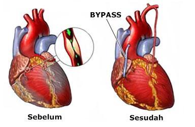 Operasi bypass jantung koroner