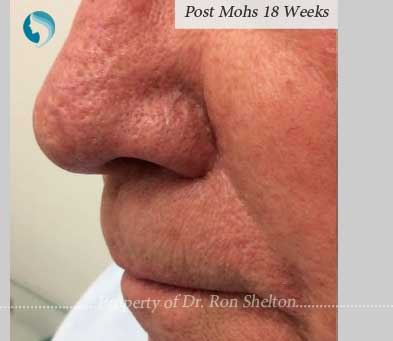 Post Mohs 18 weeks results by Dr Ron Shelton