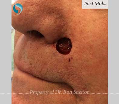 Mohs Surgery by Dr Ron Shelton