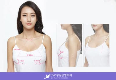 Breast Surgery in Seoul
