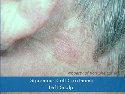 Actinic Keratosis and Squamous Cell Carcinoma