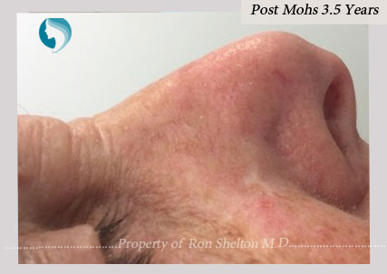Post Mohs after 3.5 years by Dr Ron Shelton, NYC