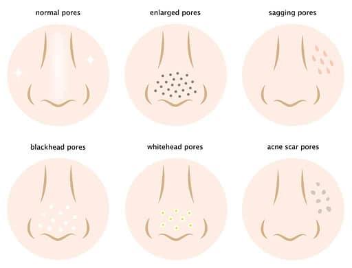 Diagram of skin pores